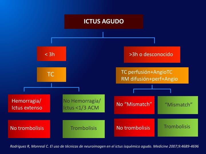 ICTUS AGUDO