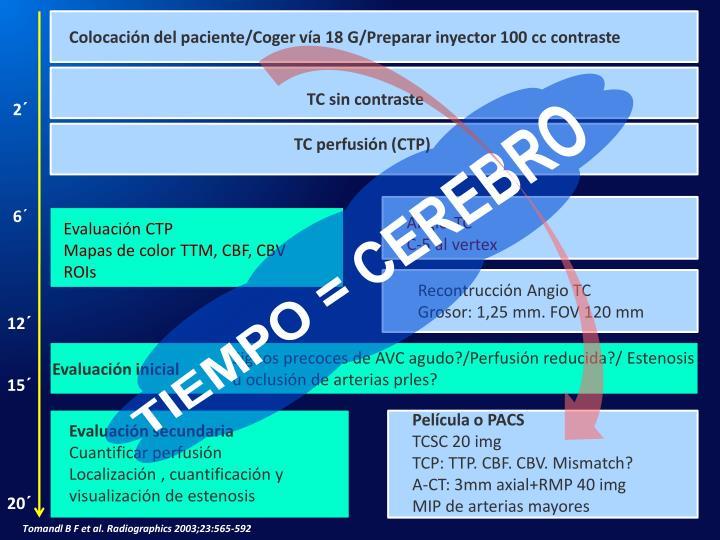 Colocación del paciente/Coger vía 18 G/Preparar inyector 100 cc contraste