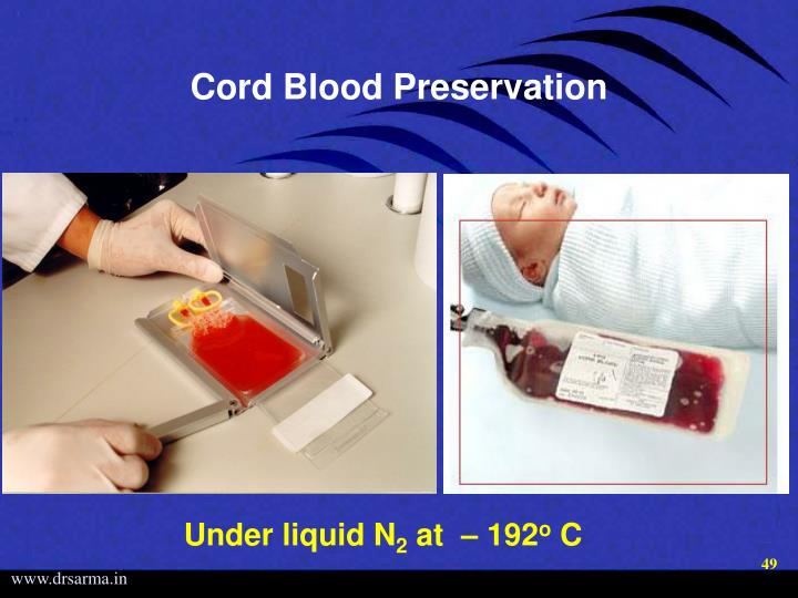 Cord Blood Preservation