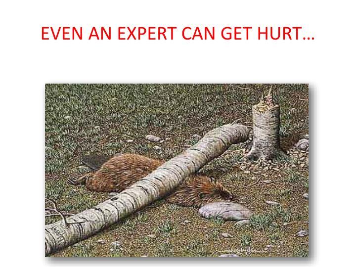 EVEN AN EXPERT CAN GET HURT…