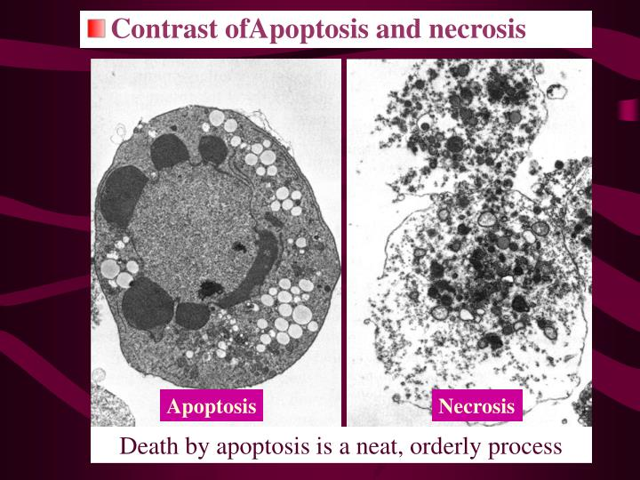 Contrast ofApoptosis and necrosis