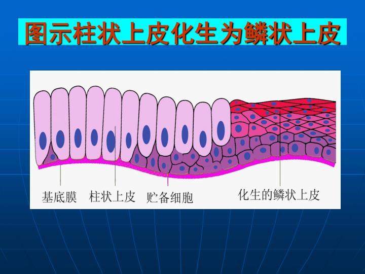图示柱状上皮化生为鳞状上皮