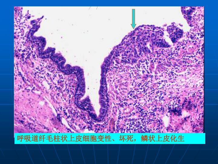 呼吸道纤毛柱状上皮细胞变性、坏死,鳞状上皮化生