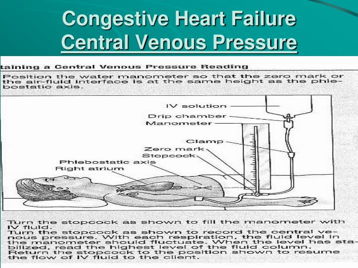 congestive heart failure case study powerpoint Acute decompensated heart failure: a case congestive heart failure who have dyspnea at rest d pilot study) p 263% 319.