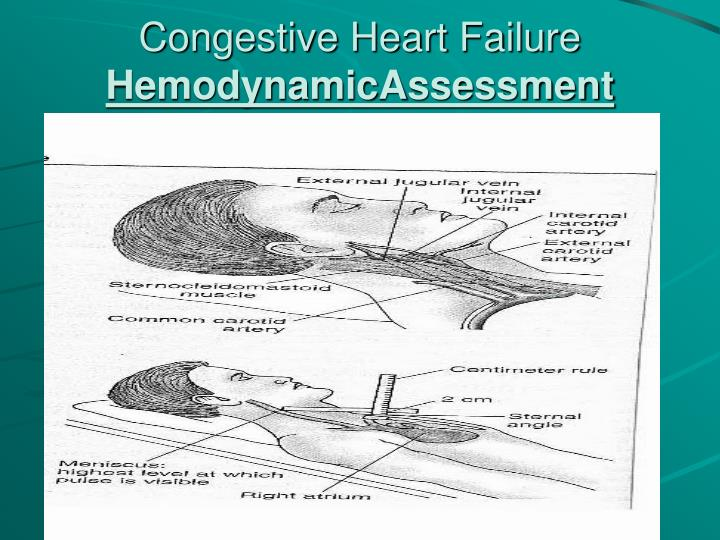 congestive heart failure case study presentation Congestive heart failure chf sugar land heart center by nik - congestive heart failure chf sugar land heart a study by chin and goldman ppt presentation.