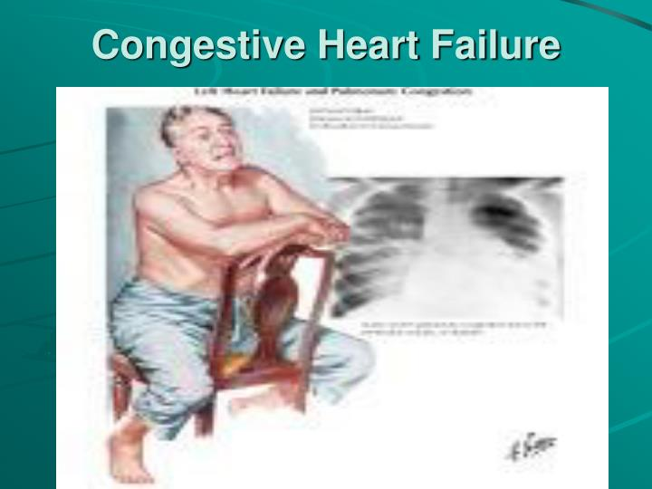 Congestive Heart Failure | Case Study Template