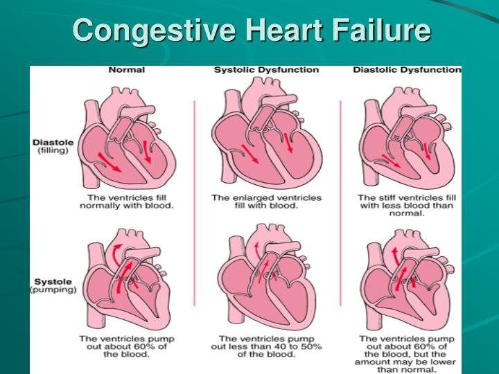 congestive heart failure term paper Global health issues, medication - congestive heart failure in the elderly - a nursing approach.