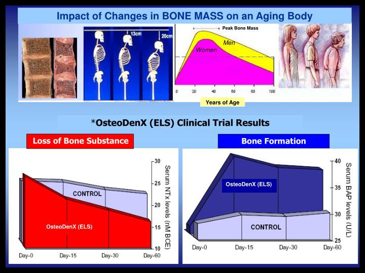 Impact of Changes in BONE MASS on an Aging Body