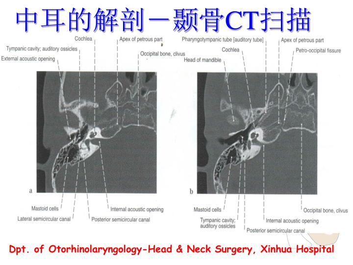 中耳的解剖-颞骨