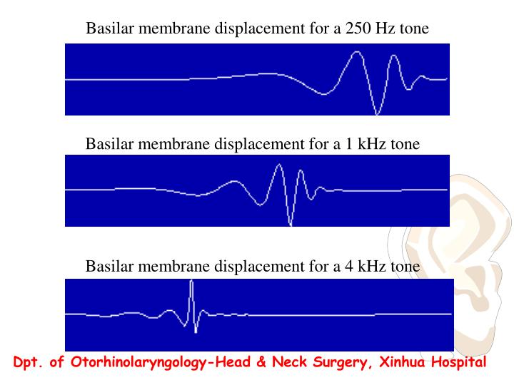 Basilar membrane displacement for a 250 Hz tone