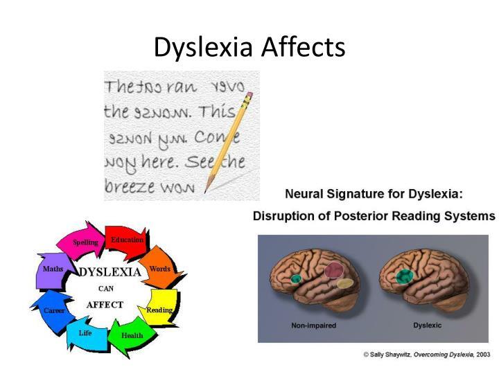 Dyslexia Affects