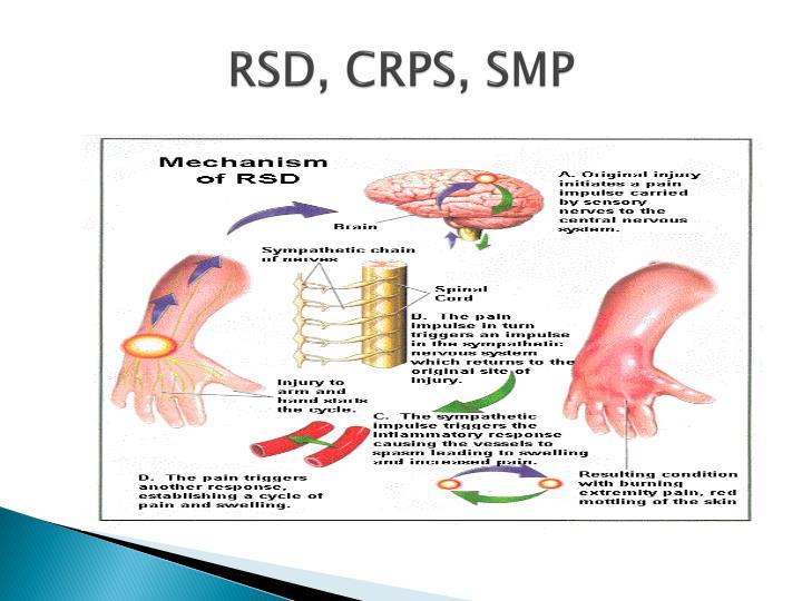 RSD, CRPS, SMP