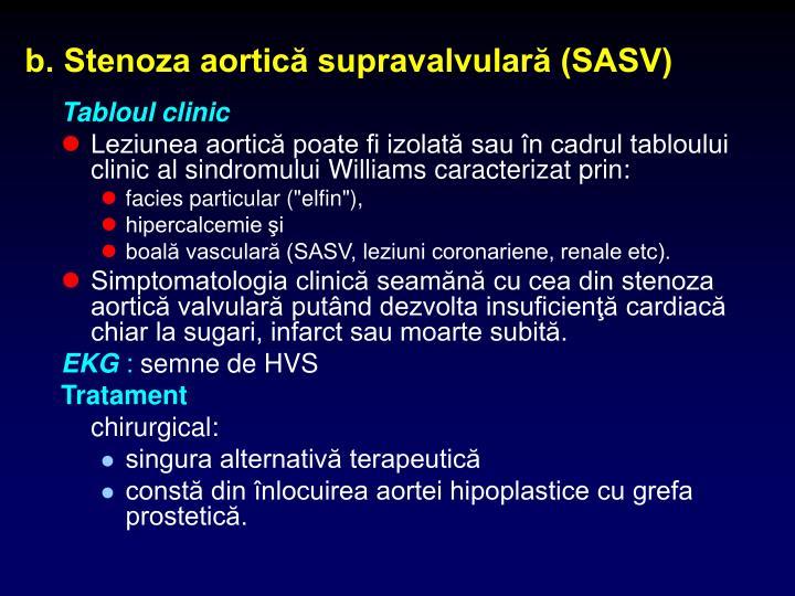 b. Stenoza aortică supravalvulară (SASV)