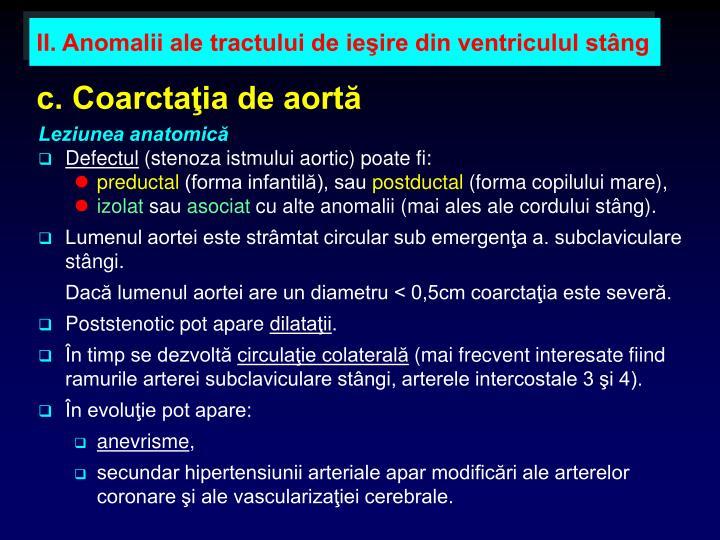 c. Coarctaţia de aortă