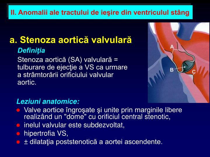 II. Anomalii ale tractului de ieşire din ventriculul stâng