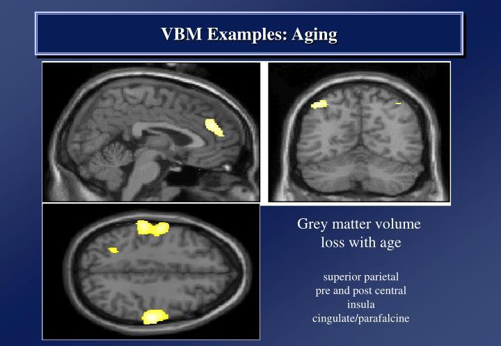 Grey matter volume
