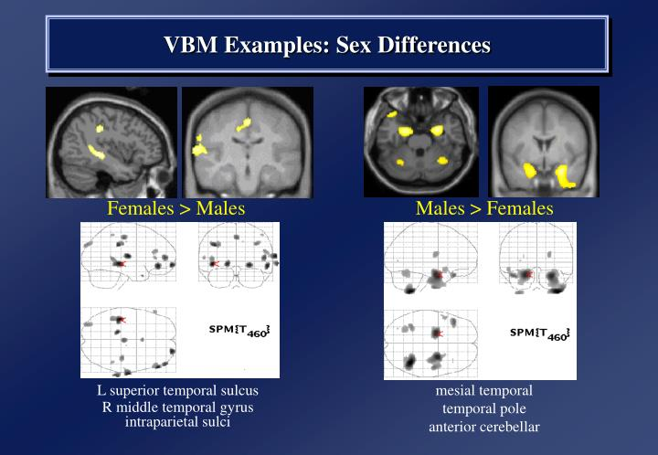 Females > Males