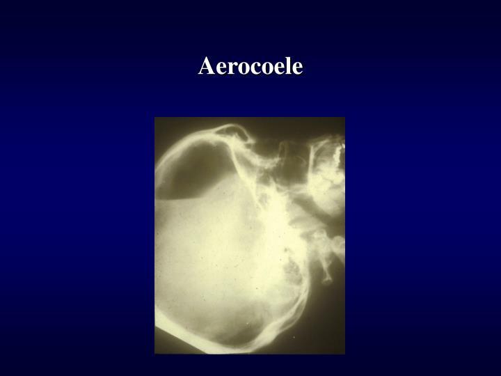 Aerocoele