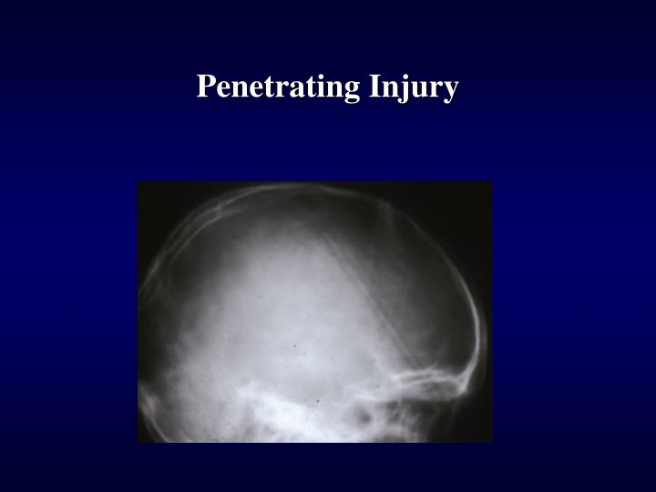 Penetrating Injury
