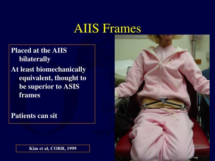 AIIS Frames