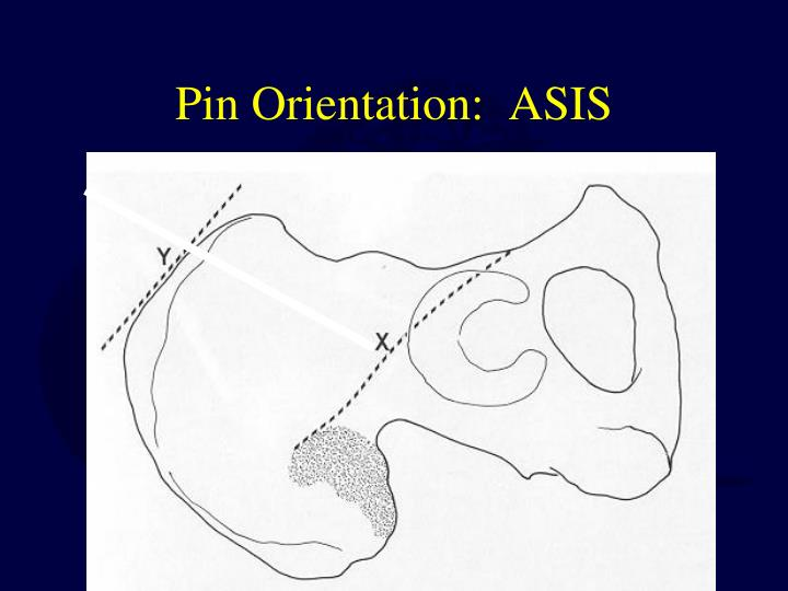 Pin Orientation:  ASIS