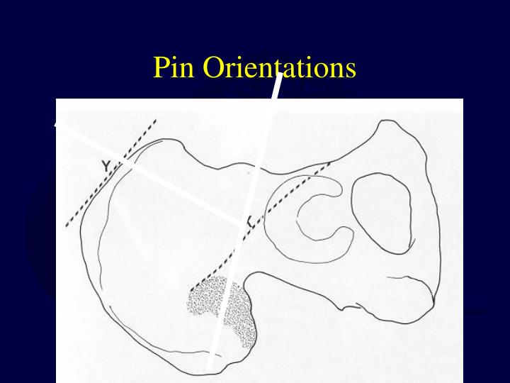 Pin Orientations