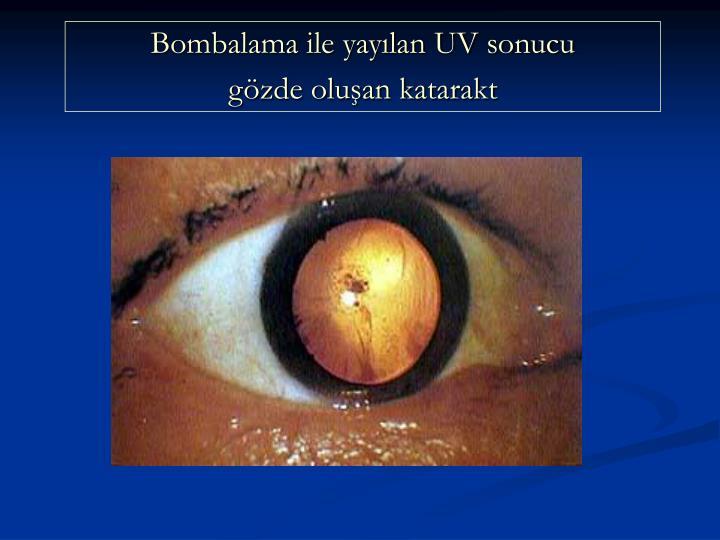 Bombalama ile yaylan UV sonucu