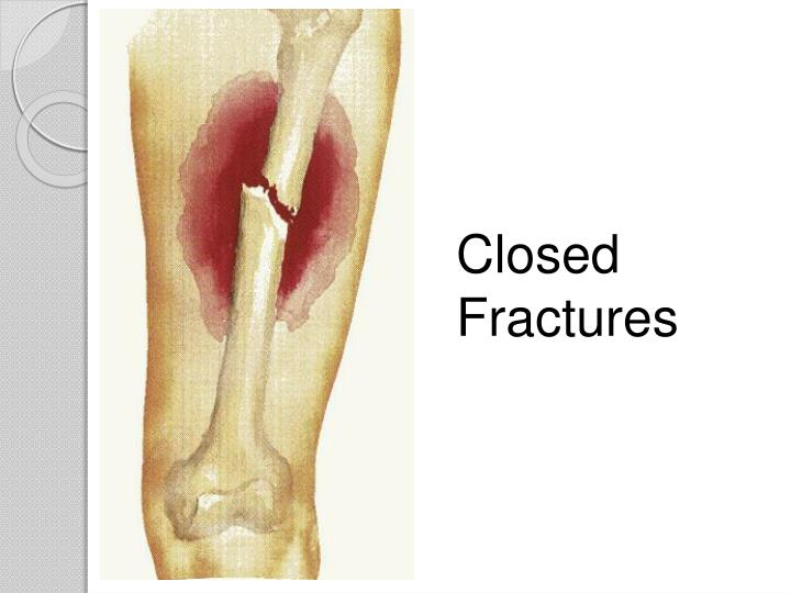Closed Fractures
