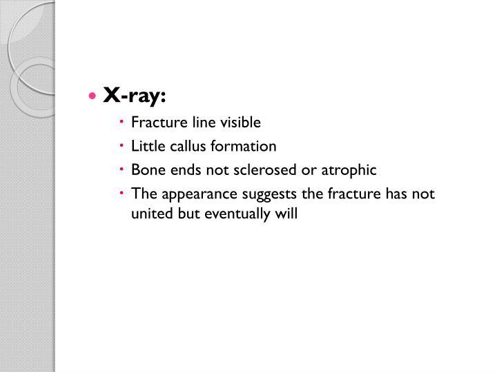 X-ray: