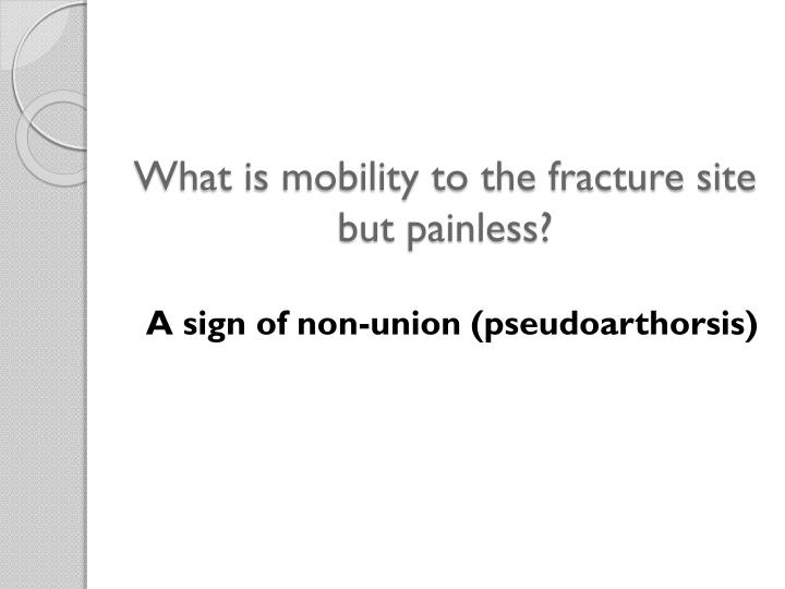 What is mobility to the fracture site but painless?