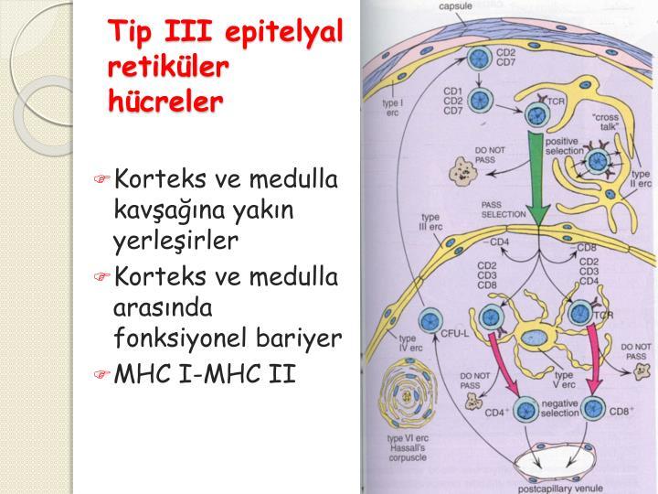 Tip III
