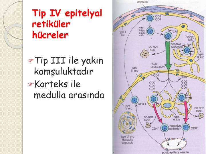 Tip IV
