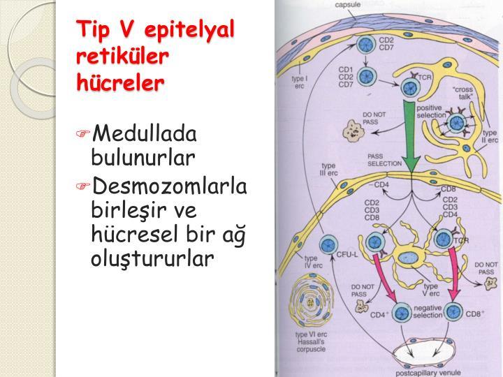 Tip V
