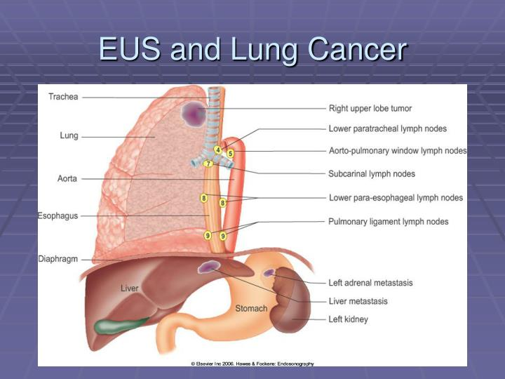 EUS and Lung Cancer