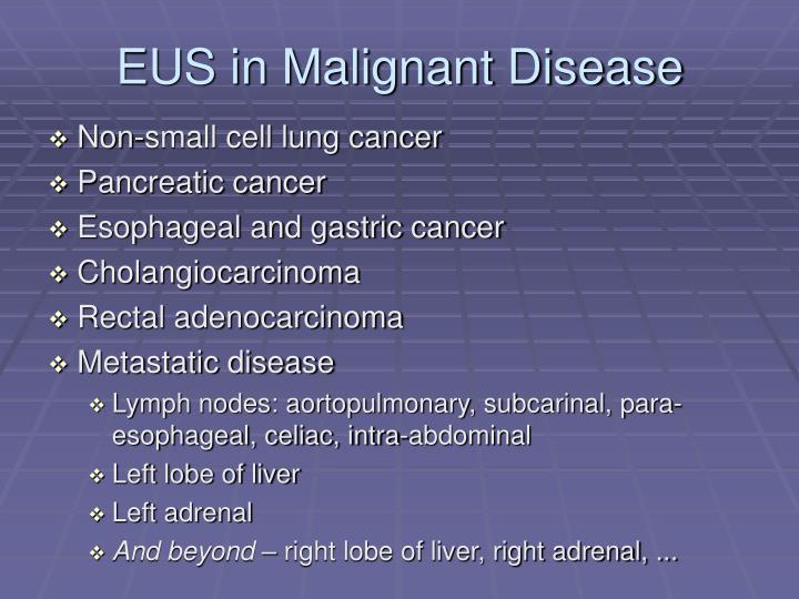 EUS in Malignant Disease