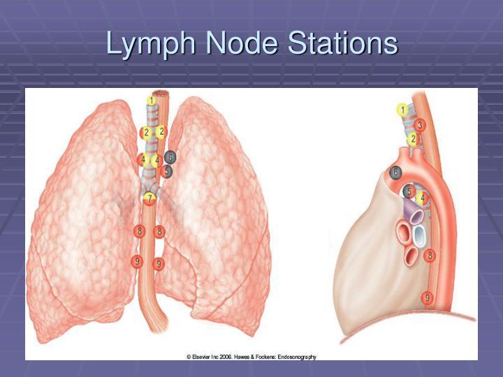 Lymph Node Stations