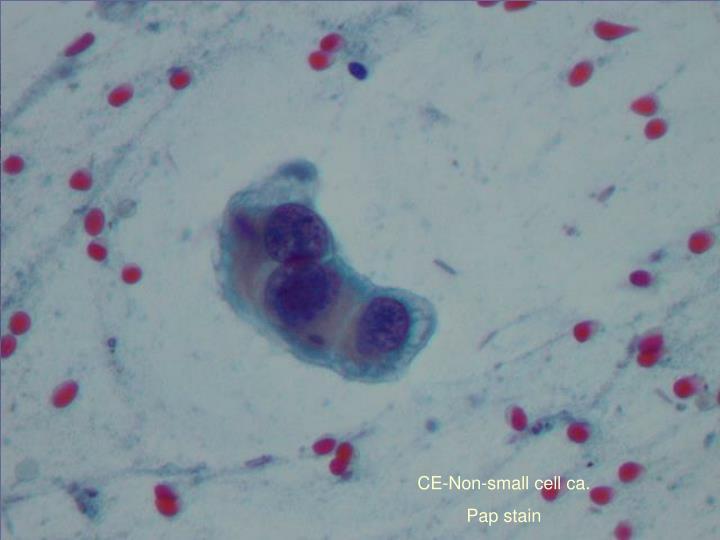 CE-Non-small cell ca.