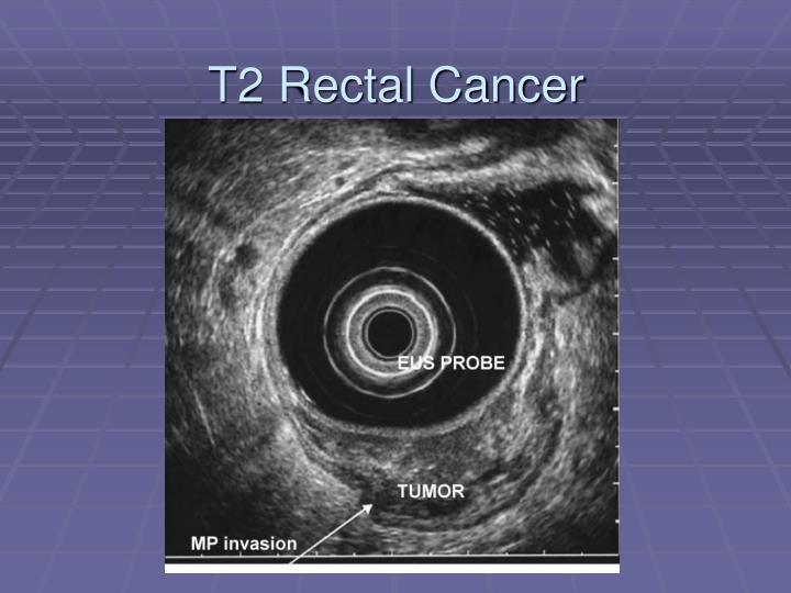 T2 Rectal Cancer