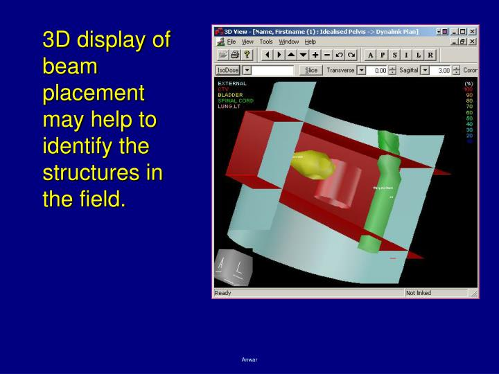 3D display of beam placement may help to identify the structures in the field.