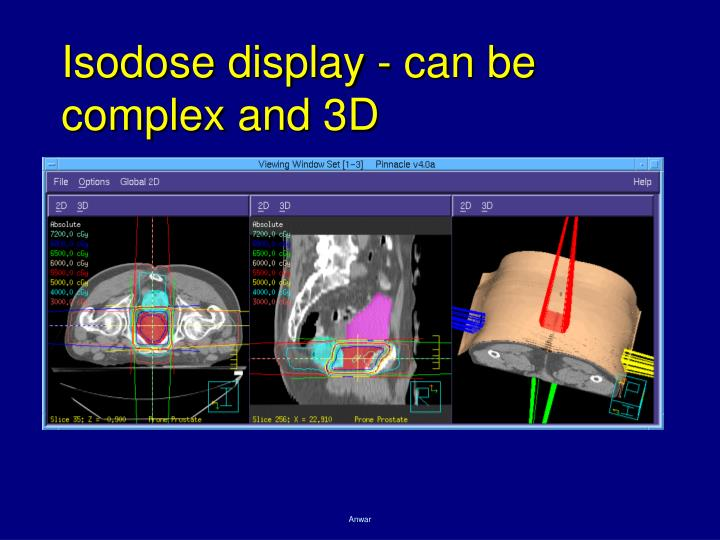 Isodose display - can be complex and 3D