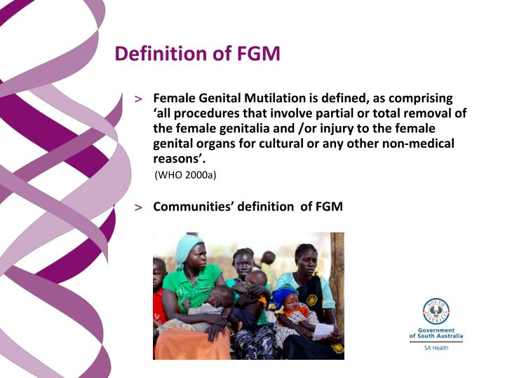 Definition of FGM
