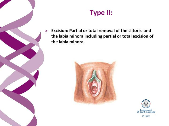 Excision: Partial or total removal of the clitoris  and the labia minora including partial or total excision of the labia minora.