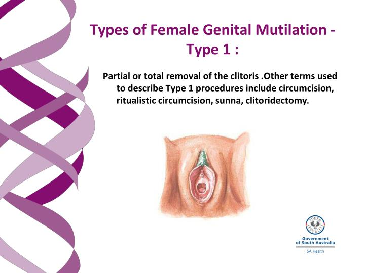 Partial or total removal of the clitoris .Other terms used to describe Type 1 procedures include circumcision, ritualistic circumcision, sunna, clitoridectomy