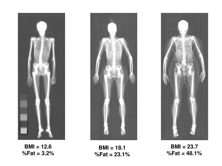 BMI = 12.6