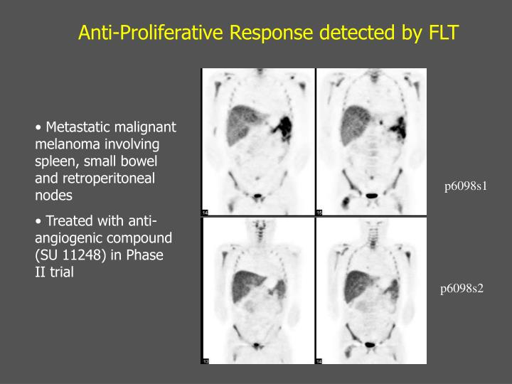 Anti-Proliferative Response detected by FLT