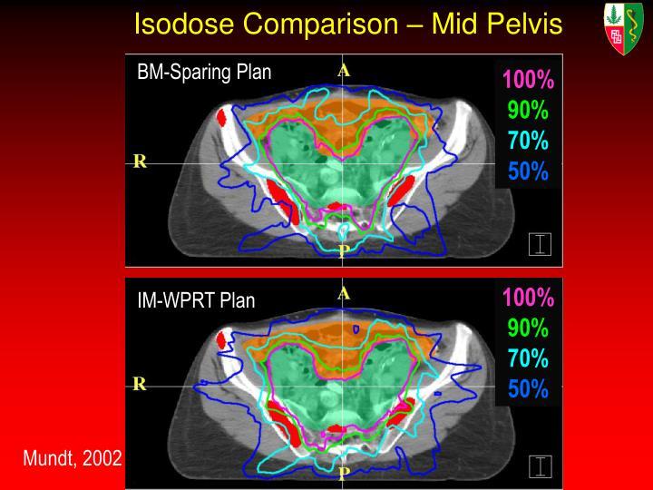 Isodose Comparison – Mid Pelvis