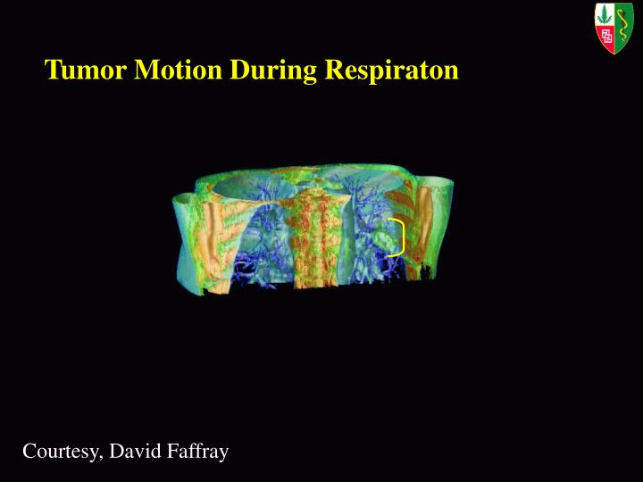 Tumor Motion During Respiraton