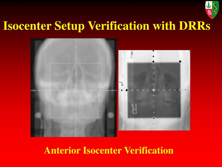Isocenter Setup Verification with DRRs