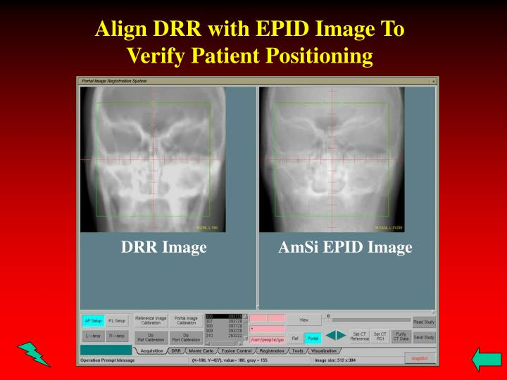 Align DRR with EPID Image To Verify Patient Positioning