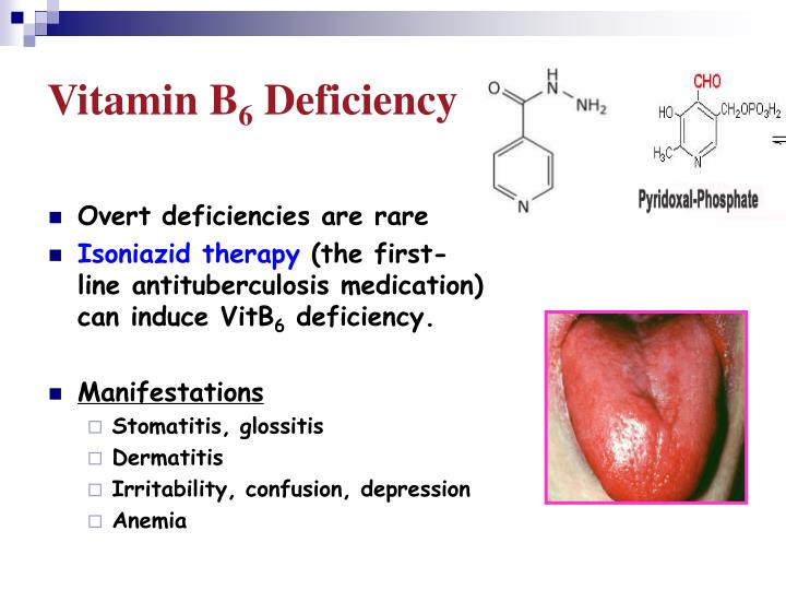 Where to buy ivermectin in the uk